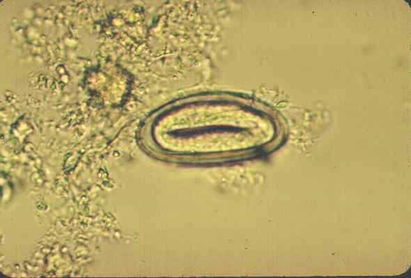 enterobius vermicularis bitkisel tedavisi)