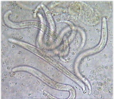 Strongyloides stercoralisStrongyloides Stercoralis